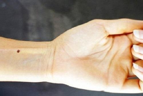 nốt ruồi ở cổ tay
