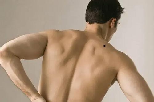 nốt ruồi ở lưng