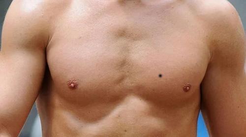 nốt ruồi ở ngực nam