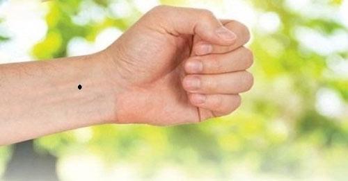 nốt ruồi trên cổ tay