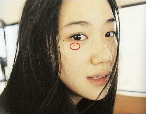 nốt ruồi dưới mắt