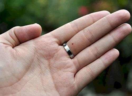 nốt ruồi ở ngón tay giữa