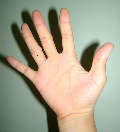 nốt ruồi son trên ngón tay