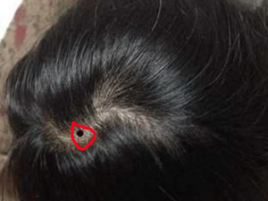 nốt ruồi trên đầu