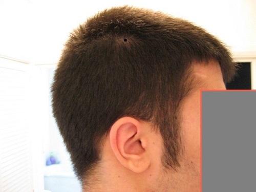 nốt ruồi trên đầu trong tóc